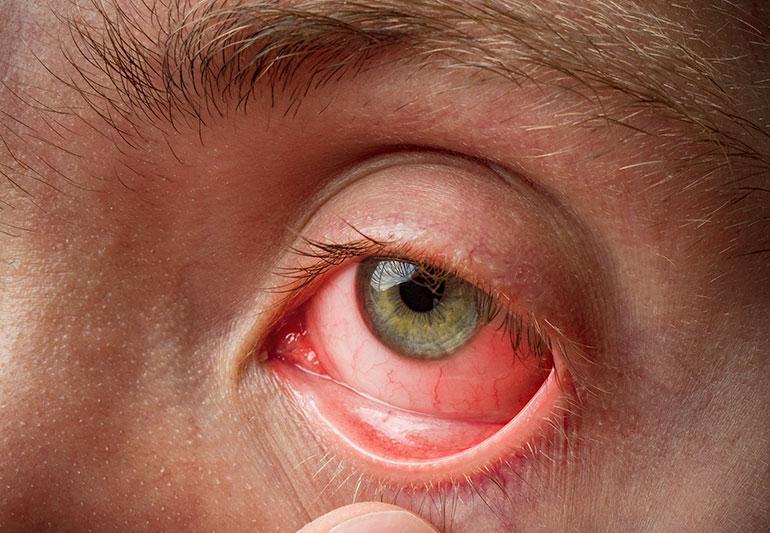 Pink Eye (Conjunctivitis): Causes, Symptoms, Treatment & Prevention