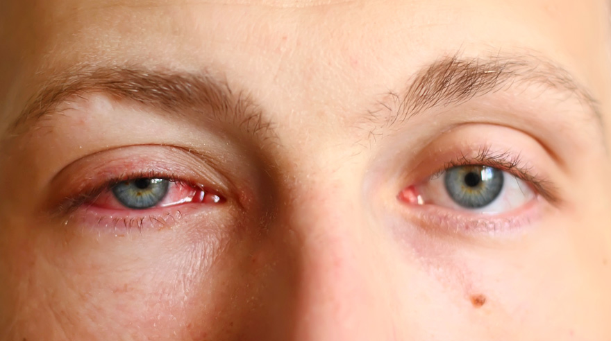 Keep Your Eyes Open for Pink Eye – San Diego – Sharp Health News