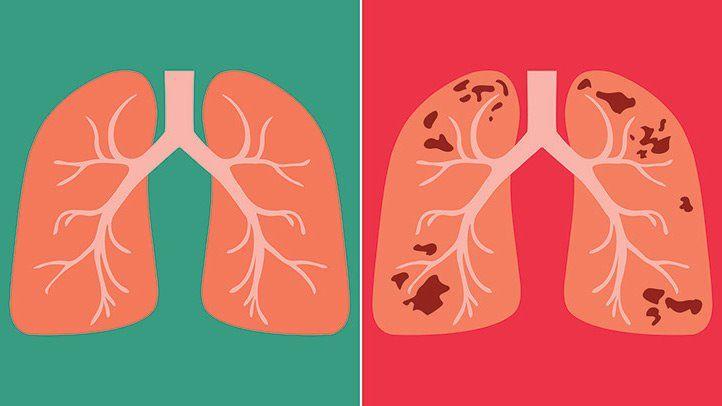3 types d'infection tuberculeuse primaire, secondaire réactivée et disséminée